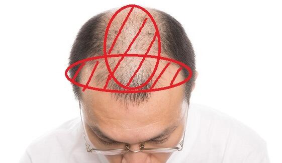 生え際(M字部分)から頭頂部(つむじ)にかけて)薄毛が広がっていたらAGAの可能性が高い