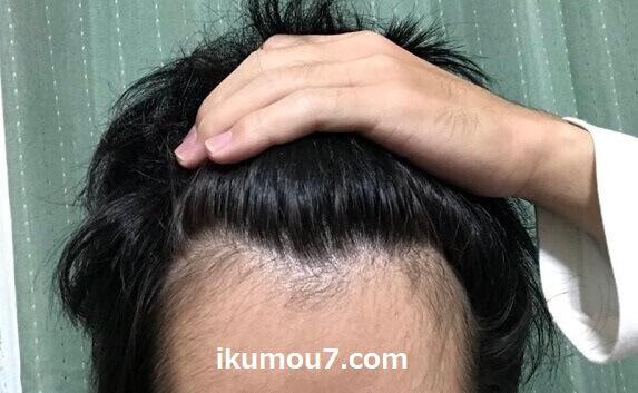 生え際・M字部分に髪が生えてきている様子
