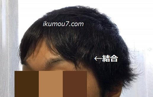 前髪とM字部分の髪を連結させる