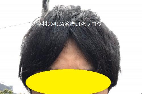 坂を下るまえの髪型