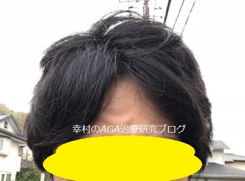 下り坂を下りた後の髪型