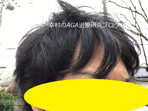 風で髪型が乱れた様子