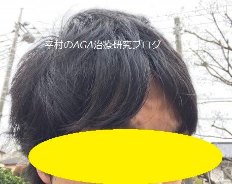 風を受けた後、元に戻した髪型