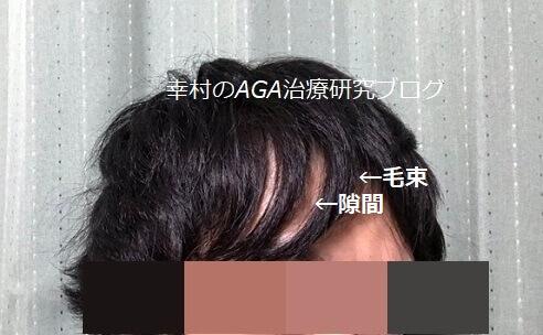 前髪に毛束と隙間ができ、地肌が透けている様子