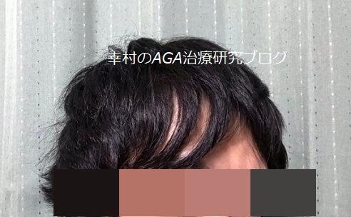 前髪の薄毛が目立つ状態