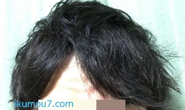 M字ハゲが目立たない髪型