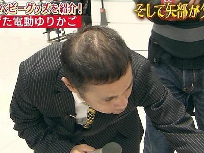 薄毛であることをテレビでいじられる岡村さん