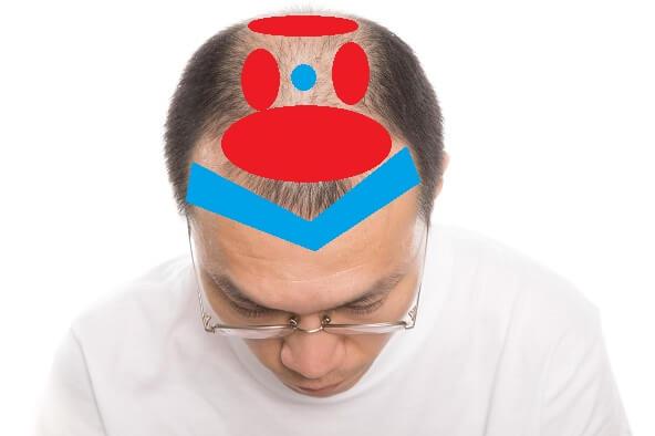 頭皮の感触を確かめるのにおすすめな部分と、そうでない部分
